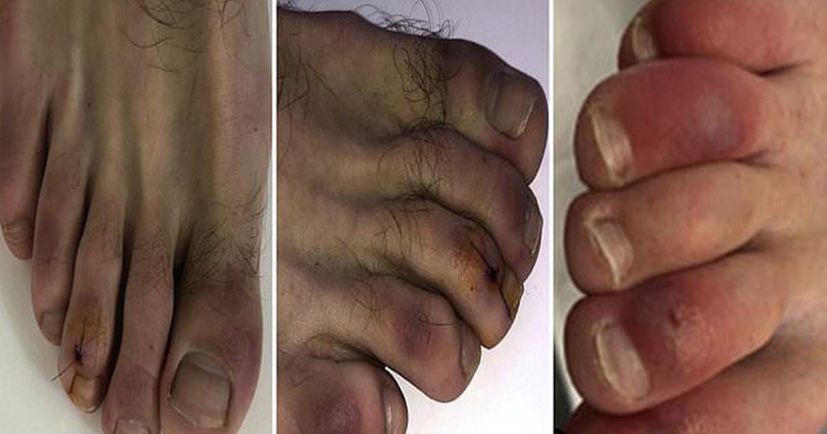 covid-19-le-symptome-des-orteils-violets-peut-durer-des-mois