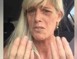 cette-femme-atteinte-de-lupus-se-fait-humilier-car-un-salon-de-manucure-refuse-de-la-toucher