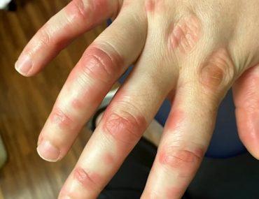 voici-la-liste-des-symptomes-du-long-covid