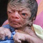 le-benjamin-button-du-bangladesh-ce-petit-garcon-ressemble-a-un-vieil-homme-de-80-ans