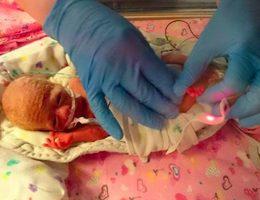 ce-bebe-premature-a-passe-ses-premieres-semaines-dans-un-sac-a-sandwich-et-cela-lui-a-sauve-la-vie