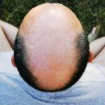 pourquoi-les-personnes-chauves-ont-plus-de-risques-de-souffrir-de-covid-severe
