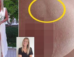 cette-mere-revele-comment-une-vergeture-sest-averee-etre-un-cancer-du-sein